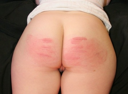 sore bottom
